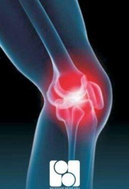 osteoartrite cronica