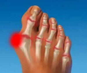 inflamația articulației vârfului stâng al degetului mare