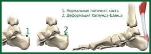 Остеохондропатия пяточной кости у детей лечение народными средствами. Остеохондропатия пяточной кости у ребенка