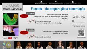 """Curso """"Facetas – Da Preparação à Cimentação"""""""