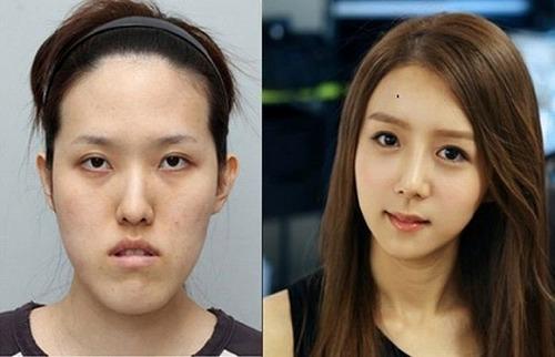 、韓国がほこる驚愕技術「美容整形手術」