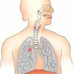 2010年10月29日の舌癌ブログ 舌癌のあれこれ