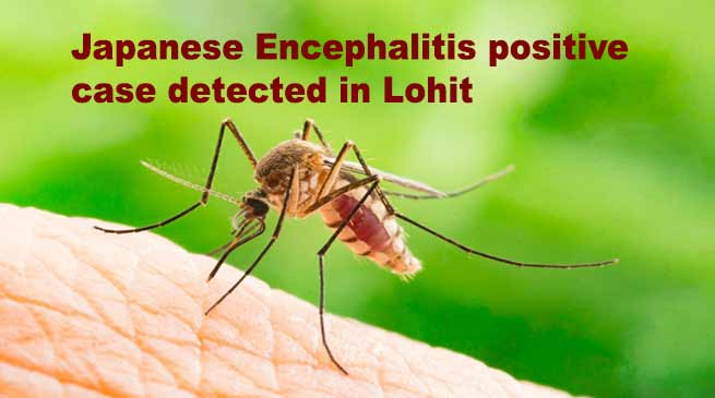 Arunachal: Japanese Encephalitis positive case detected in Lohit