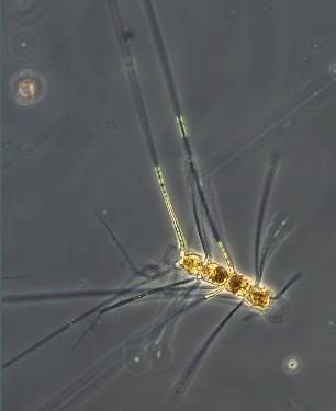 diatom_kiselalge_Chaetoceros