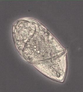 dinoflagellate_fureflagellat_gyrodinium