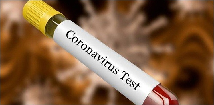 Photo of 1,782 new cases of coronavirus bring Sindh's number to 41,303