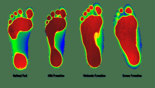Why Do We Use Foot Levelers Custom Orthotics (& Why Are Rigid Orthotics Terrible)? Foot Levelers Brookfield Chiropractor