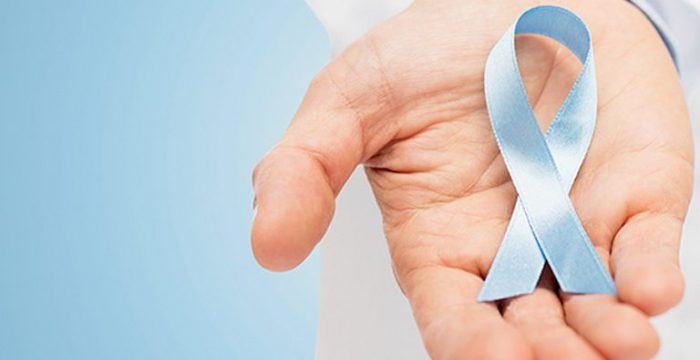 criterios para realizar biopsia de prostata