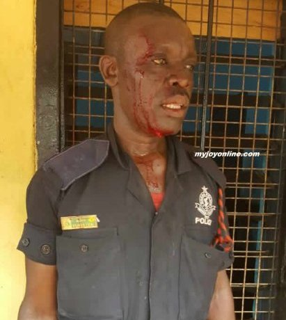 Injured police officer