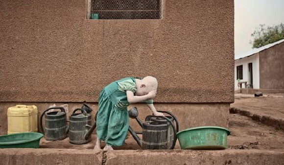 Albinism affects around one in every 1,400 Tanzanians, far higher than average