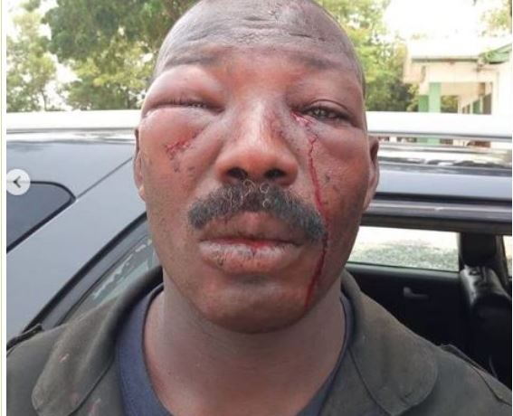Sgt. Mahanadi sustained after the brutality by angry residents of Amasaman