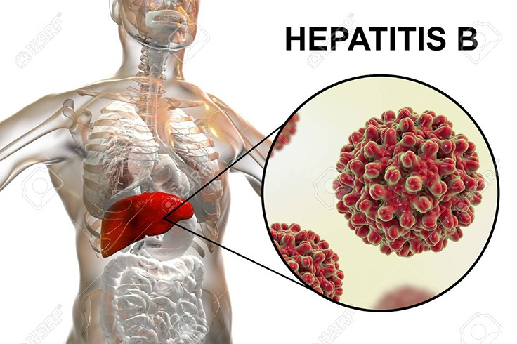 Hepatitis kills more people in Africa than TB, Malaria or HIV