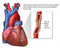 Tips Cara Mengetahui Penyebab dan Gejala Penyakit Jantung