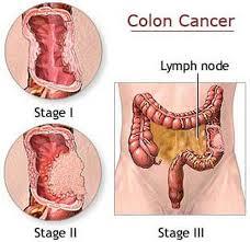 Makin Bahaya, Kejadian Kanker Usus sudah Meningkat