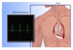 Cara Tes dan Memeriksa Kesehatan Jantung Kita