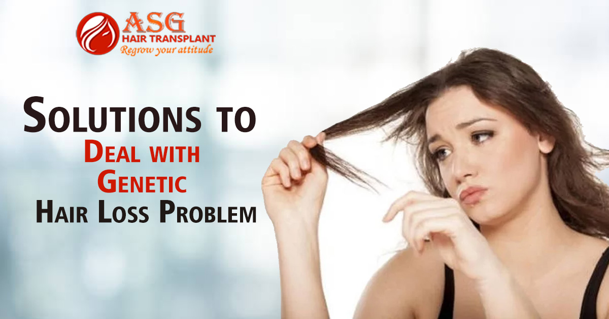 Solutions To Deal With Genetic Hair Loss Problem