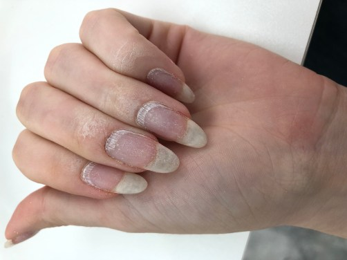 Natural nails after a professional removal