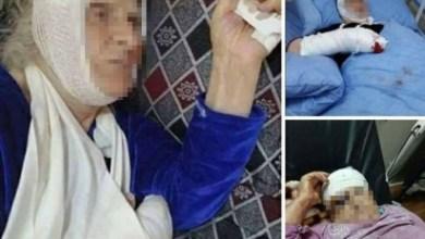 Photo of حقوق الإنسان تدين الاعتداء على مسنتين في برطلة وتدعو الداخلية لتوفير الحماية