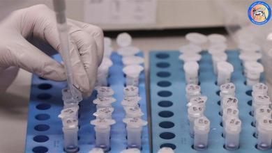 """Photo of جائحة جديدة"""".. علماء يحذرون من فيروس تصل نسبة فتكه لـ75%"""
