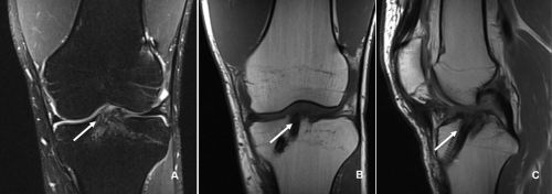 Figure 1: Magnetic resonance imaging (MRI) of a left knee of a 21-years old male patient one year after ACL reconstruction with an autologous quadriceps tendon grafts. A) Coronal T2-weighted coronal image with the arrow indicating the fibrous interface between the soft tissue graft and the bone tunnel. B) T1-weighted coronal cut with a homogenous intra-tunnel portion of the graft (arrow). C) T1-weighted sagittal image. At the distal part of the tibial bone tunnel the interference screw is visible. The arrow proximal to the interference screw highlights the fibrous interface in the anterior part of the bone tunnel.