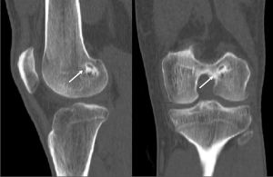 Figure 2: Sagittal and coronal computed tomography image of a left knee of a patient six months after ACL reconstruction with an aoutologous quadriceps tendon with a patellar bone block in the femoral tunnel. The bone block is partially integrated in the surrounding bone (arrow). The bone tunnel is surrounded by a thin sclerotic wall (arrow).