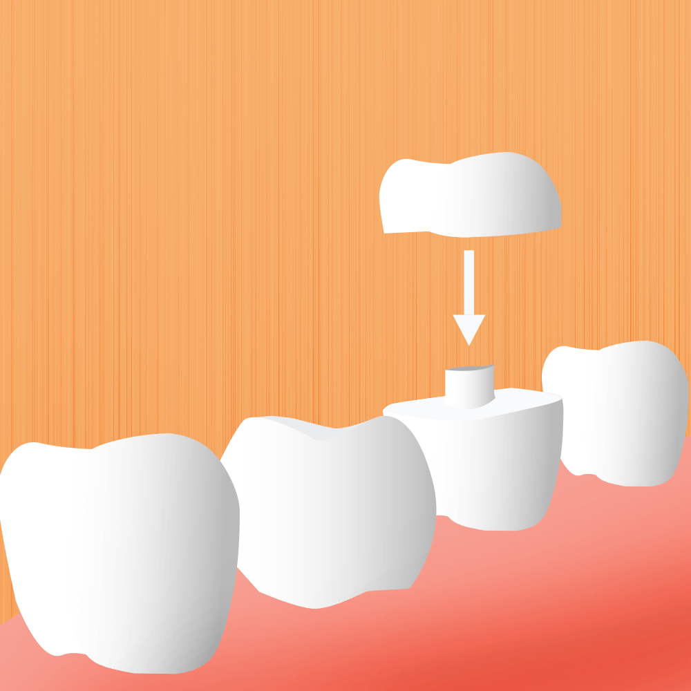 Image For Porcelain Crowns Page