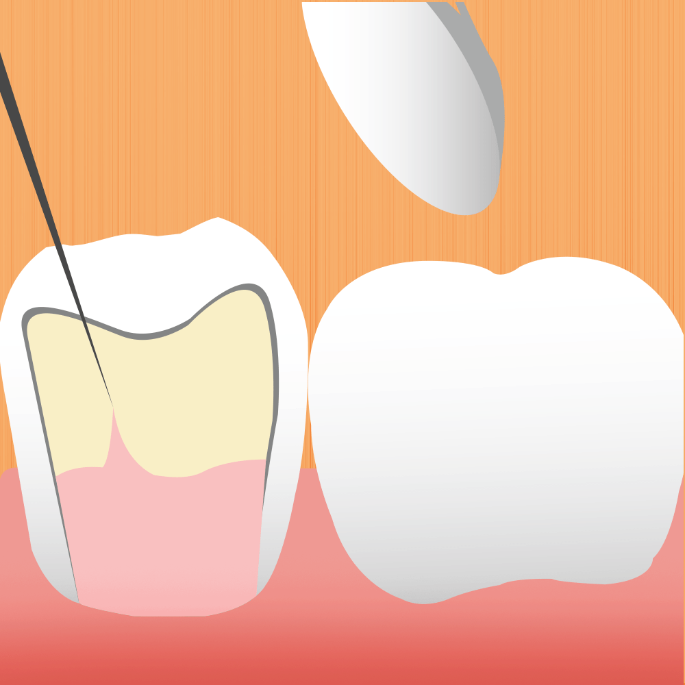 Image For Root Canal Page