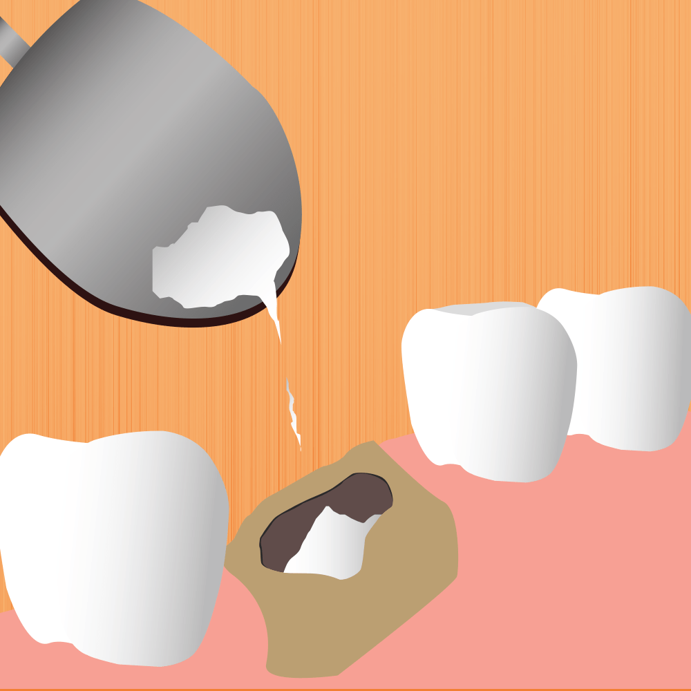 Image For Bone Grafting Page