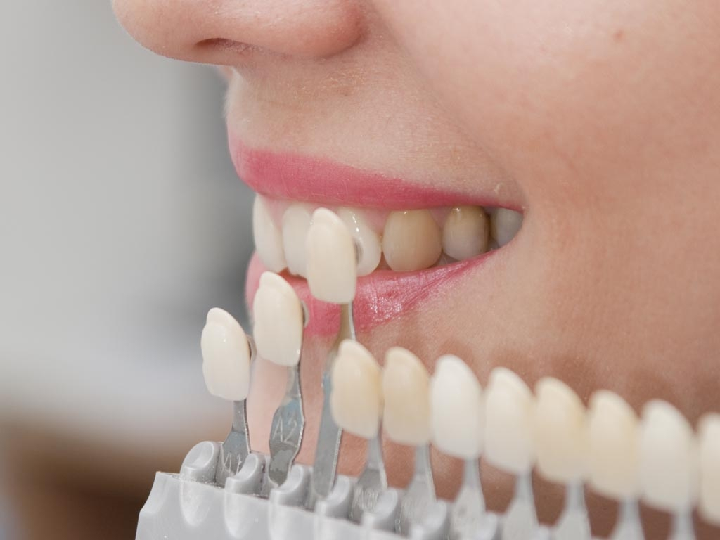 featured image for what is a dental crown