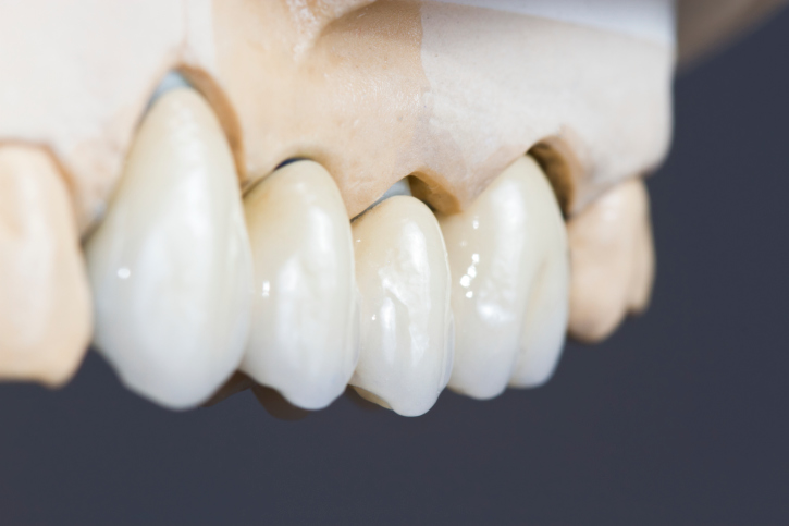 image for missing teeth replacements