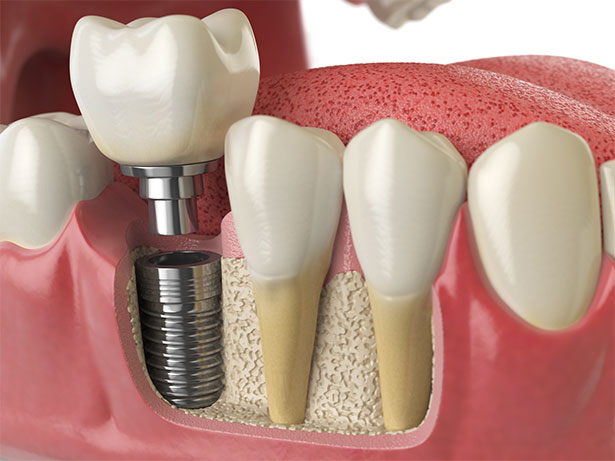 featured image for dental implants in the Philippines