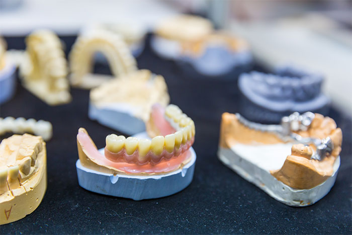 featured image for cost of dentures in Manila