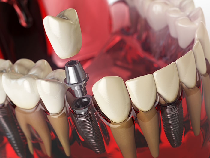 featured image for How much does a tooth implant cost in the Philippines