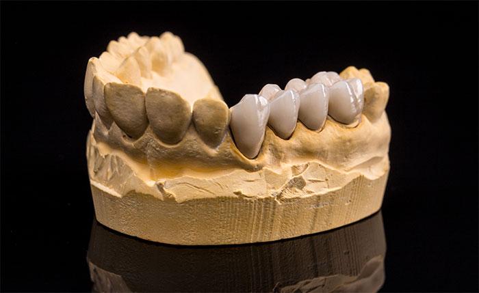 Should I get a dental bridge