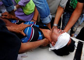An injured man is rushed to a hospital after he was injured during clashes between police and protesters, in Srinagar