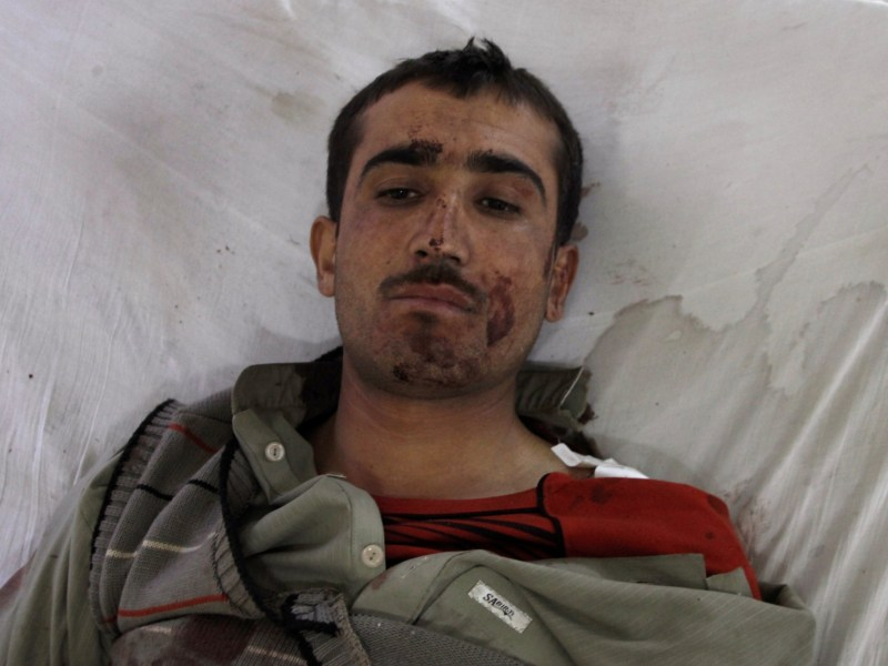 A police cadet from the Police Training College lies in a Quetta hospital after being injured in the attack. Photo: Reuters/Naseer Ahmed