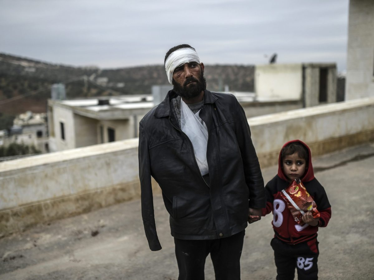 An injured Syrian man on the Syrian side of the Bab al-Hawa border crossing between Syria and Turkey waits with his child outside a hospital on December 16, 2016. Photo: AFP / Bulent Kilic