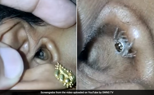 A Bangalore woman's ear canal had an unwelcome visitor. Photo: YouTube
