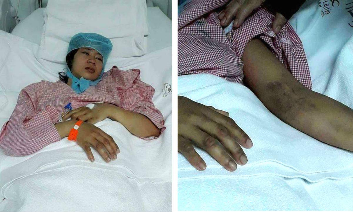 Filipino maid Regine Pedregosa allegedly had a breakdown after her employer abused her. Photos: Facebook