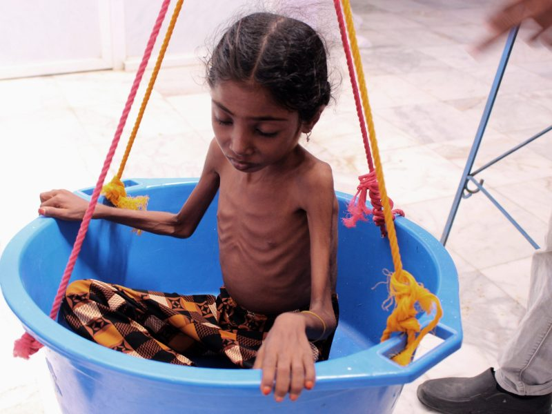 A Yemeni child suffering from severe malnutrition is weighed at a treatment centre in a hospital in Yemen's northwestern Hajjah province, on October 25, 2018. Photo: Essa Ahmed / AFP