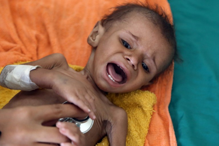 A Yemeni child receives treatment for malnutrition at a hospital in the city of Taez on November 21. Photo: AFP
