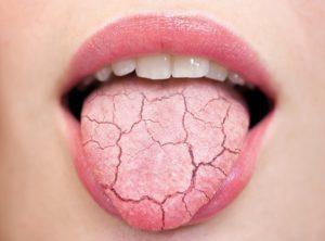 sequedad de boca asociada con diabetes