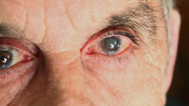 San Juan Realizarán controles gratuitos para prevenir la ceguera
