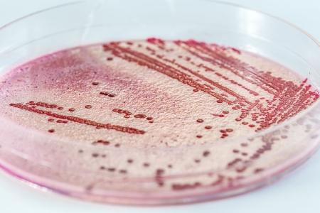 """NYC Hospitals Battle Drug-Resistant """"Superbug"""""""