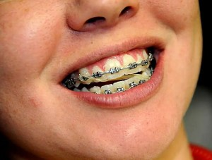 Anterior Diagonal Orthodontic Rubber Bands