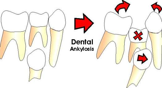 Dental Ankylosis Tooth Movement