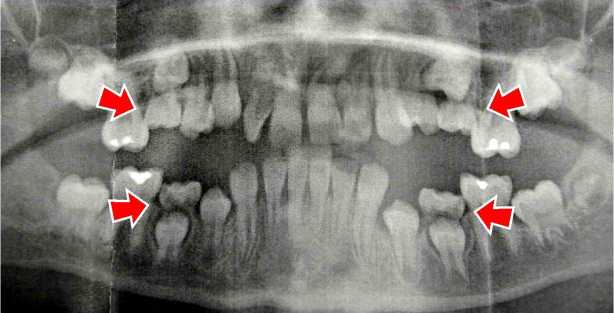 Dental Xray Shows Four Ankylosed Primary Teeth