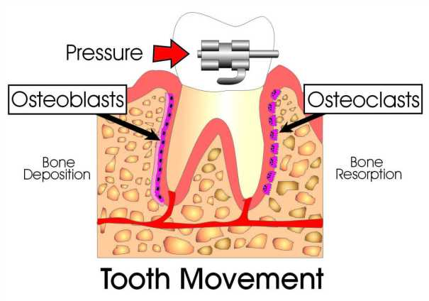 Tooth movement from pressure with braces