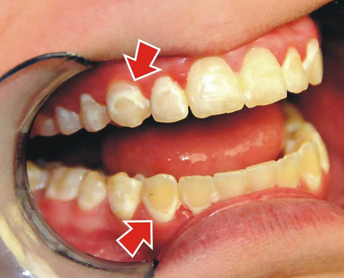 How Do You Treat White Spots After Braces? | Ask an ...