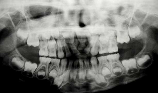 Impacted Permanent Central Incisors from Anklyosed Primary tooth Radiograph